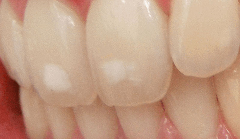 Fluorose dentária ou mancha branca no dente?